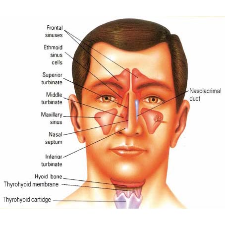 Sinusitis  -