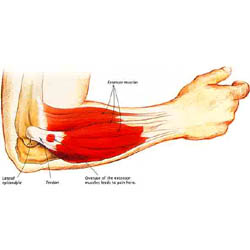 Tennis Elbow  -